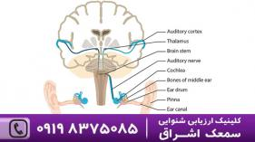 سیستم شنوایی